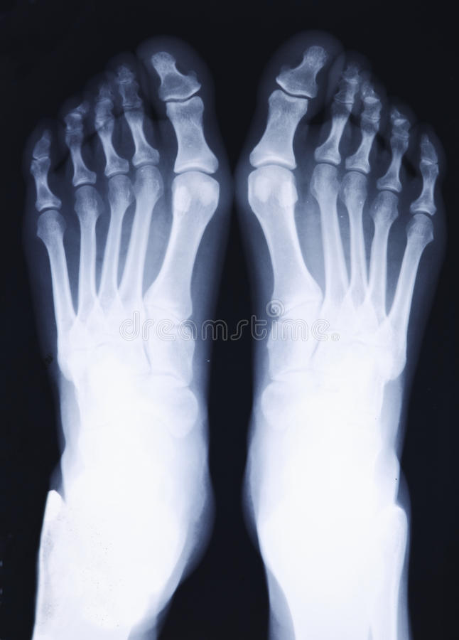 Download Feet Xray Royalty Free Stock Images - Image: 19001389