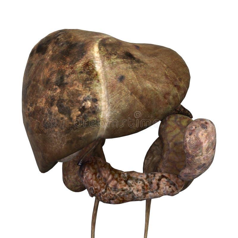 Fegato umano malato illustrazione di stock