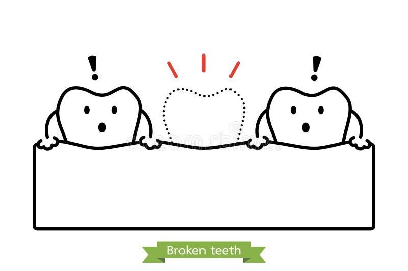 Fehlender Zahn - Karikaturvektor-Entwurfsart vektor abbildung