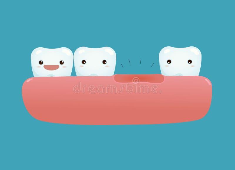 Fehlender Zahn von zahnmedizinischem vektor abbildung