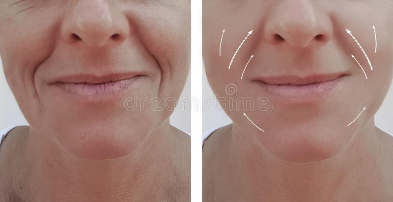 Female adult wrinkles removal dermatology contrast lift filler patient difference before and after procedures, arrow royalty free stock photos