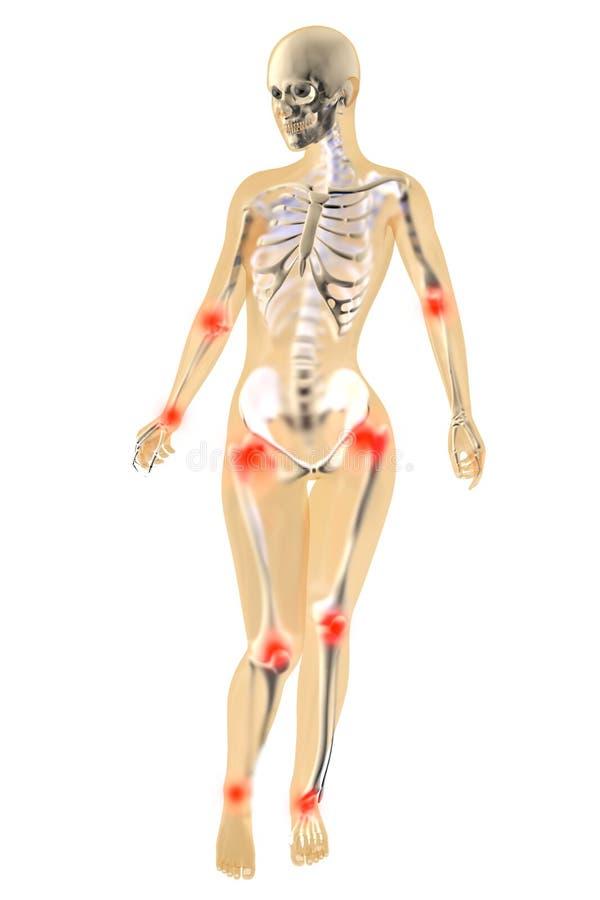 Female Anatomy - Joint Ache Stock Illustration - Illustration of ...