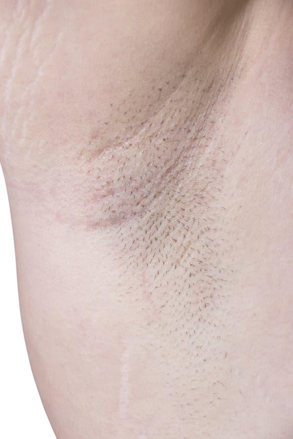 Female Armpit With Irritation Royalty Free Stock Photography