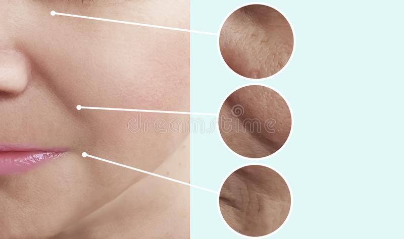 Female beauty wrinkles before after difference collage beautician effect tension treatments. Female beauty wrinkles before and after treatments correction stock photos