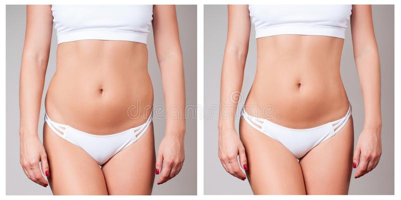 Female body before and after treatment. Plastic surgery. stock photos