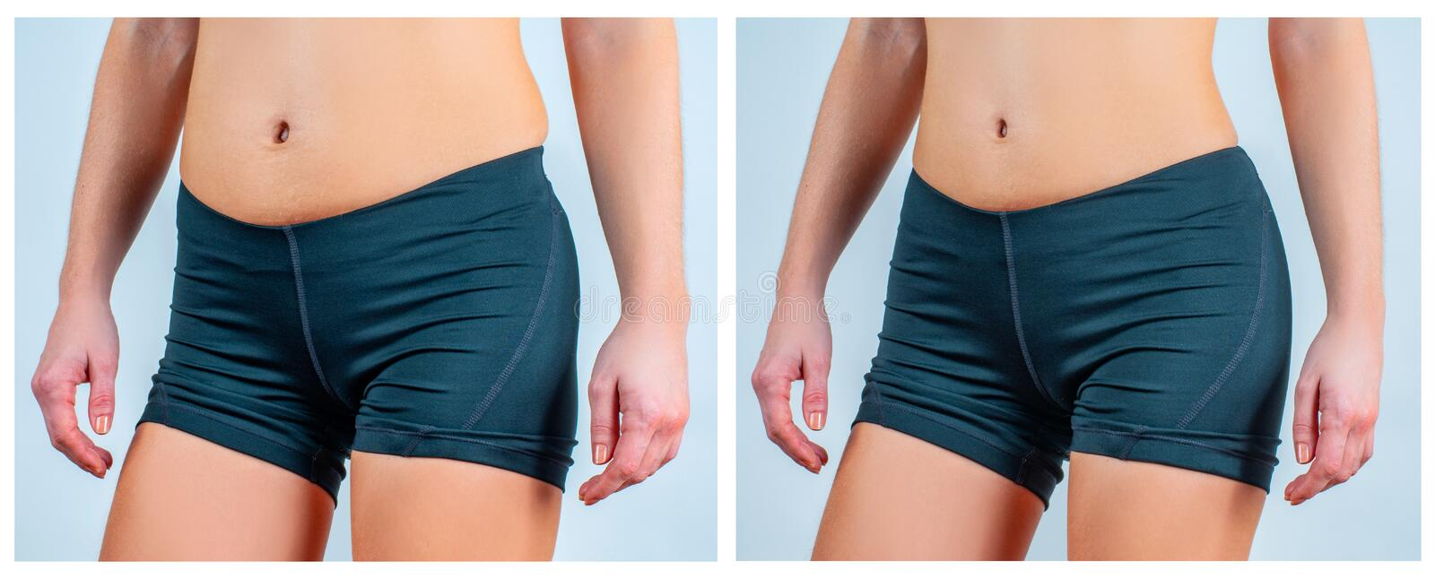 Liposuction Stock Images - Download 4,197 Royalty Free Photos - Page 2