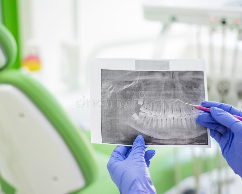 Female dentist holding a dental x-ray. The nurse holds an x-ray from the human jaw and points to a tooth with caries. Periodontist`s office royalty free stock photography