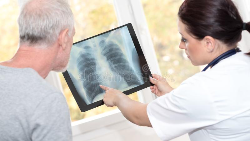 Doctor showing x-ray report to patient stock images
