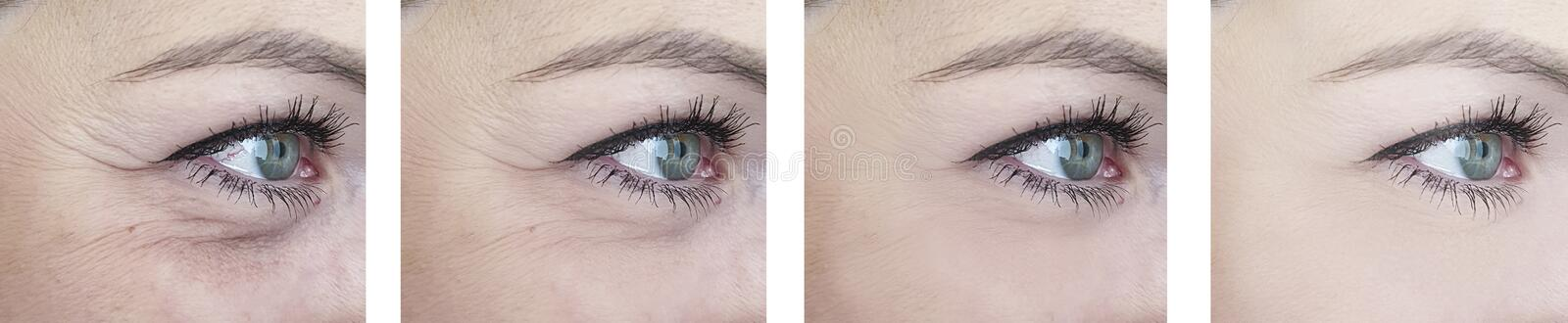 Female elderly  eyes  wrinkles before difference after lifting correction procedures. Female elderly wrinkles before after patient procedures  lifting effect stock photo