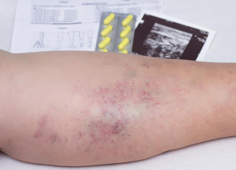 Female elderly leg with varicose veins, next to it is an examination, an ultrasound scan and a tablet for varicose veins, close-up stock photo