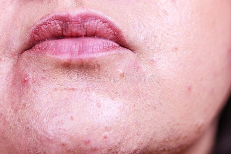Female face with acne skin problem stock photos