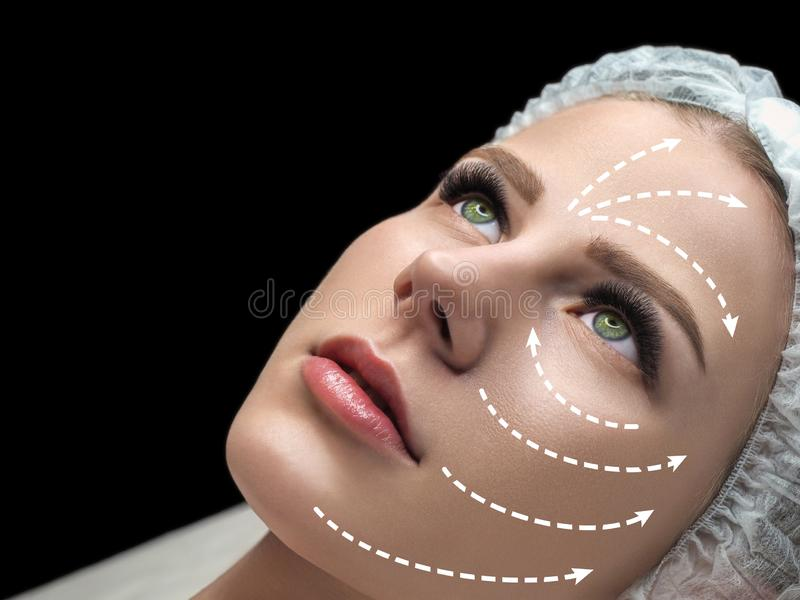 Female face marked with white arrows on the main facial lifting lines. Caucasian woman in spa salon, selected focus. Rejuvenation procedure, beautician stock images