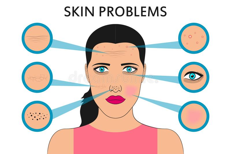 Female face skin problems. Acne and pimples, black spots, redness, dryness, circles under the eyes and wrinkles. Vector. Female face skin problems. Acne and stock illustration