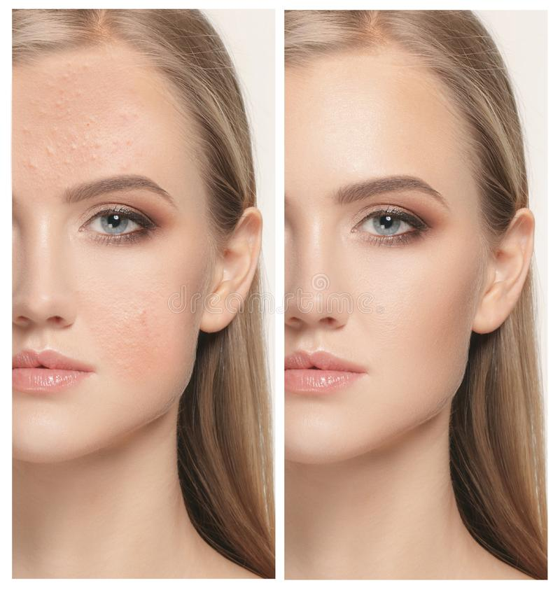 Woman before and after treatment. The female face of woman before and after treatment, collage royalty free stock images