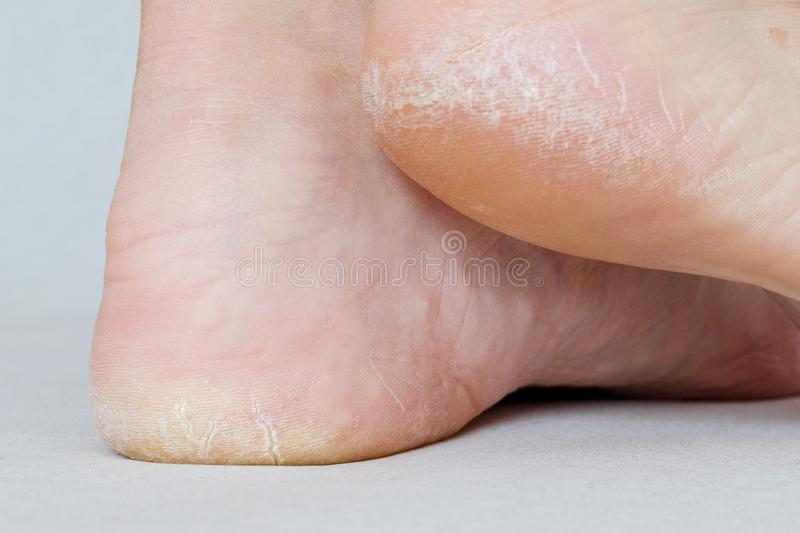Female feet with dry heels, cracked skin. Closeup with details, selective focus royalty free stock image