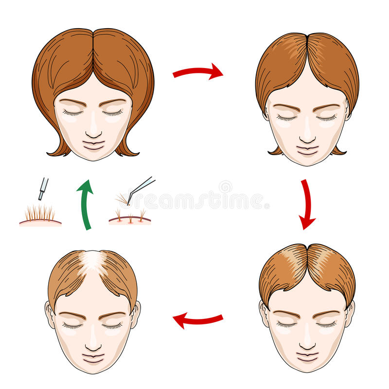 Female hair loss and transplantation icons stock illustration
