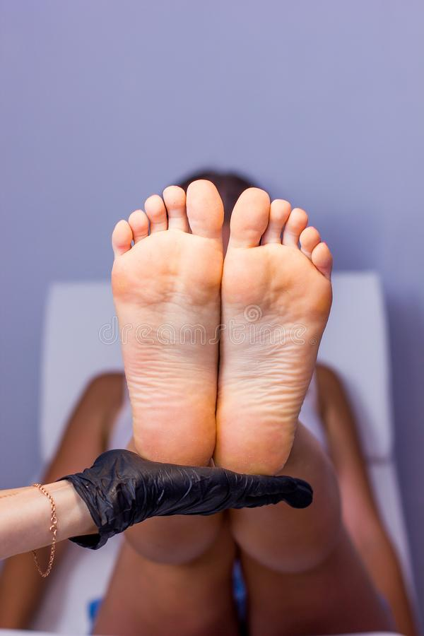 Female hand hold Feet with dry skin before treatment. Feet before pedicure. Realistic example of work on pedicure stock photography