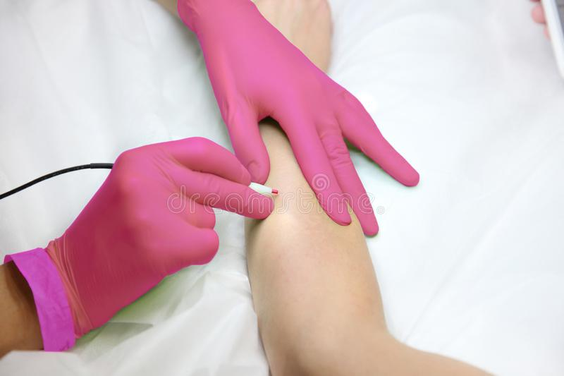 Female hand gloves when removing hair with electric hair removal device. Female hand in pink gloves when removing hair with electric hair removal device royalty free stock photos