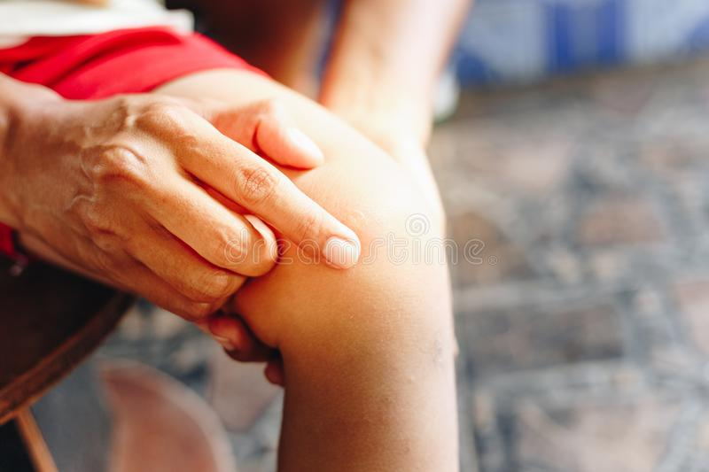 Female hand to treat the patient`s knee with mosquito bites mosquito. Blister caused by insect bite and mother take care ,Female hand to treat the patient`s royalty free stock photos