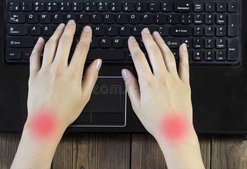 Female hands, joint pain work at a computer, close-up, tunnel syndrome stock photo