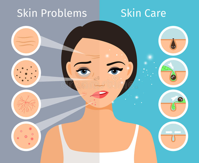 Female head with skin problems solution. Home facial skin clean and oily, care and cosmetology. Female head with beautiful skin problems solution vector royalty free illustration