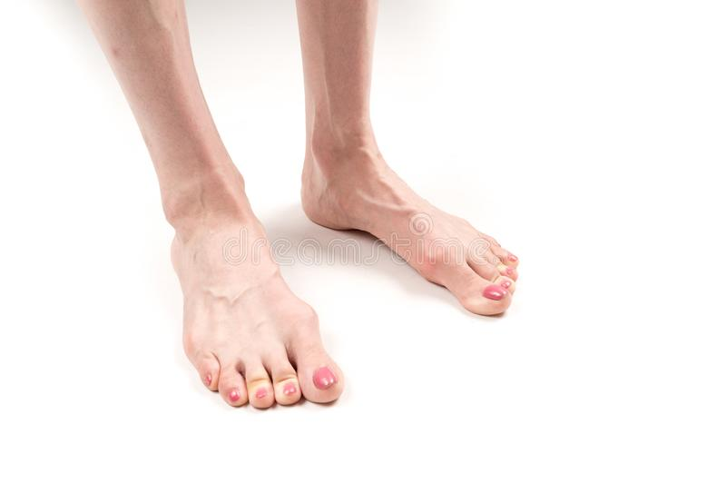 The female legs with transverse flat feet and protruding veins royalty free stock image