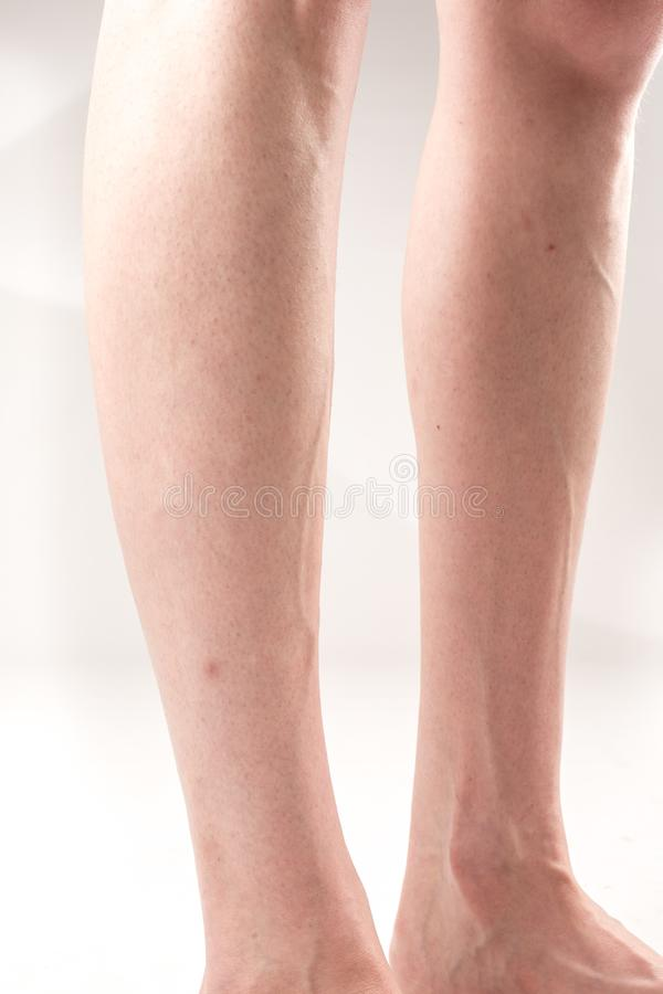 The female legs with transverse flat feet and protruding veins royalty free stock photos