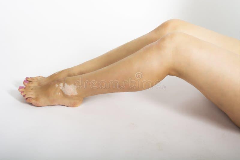Female legs with vitiligo disease stock image