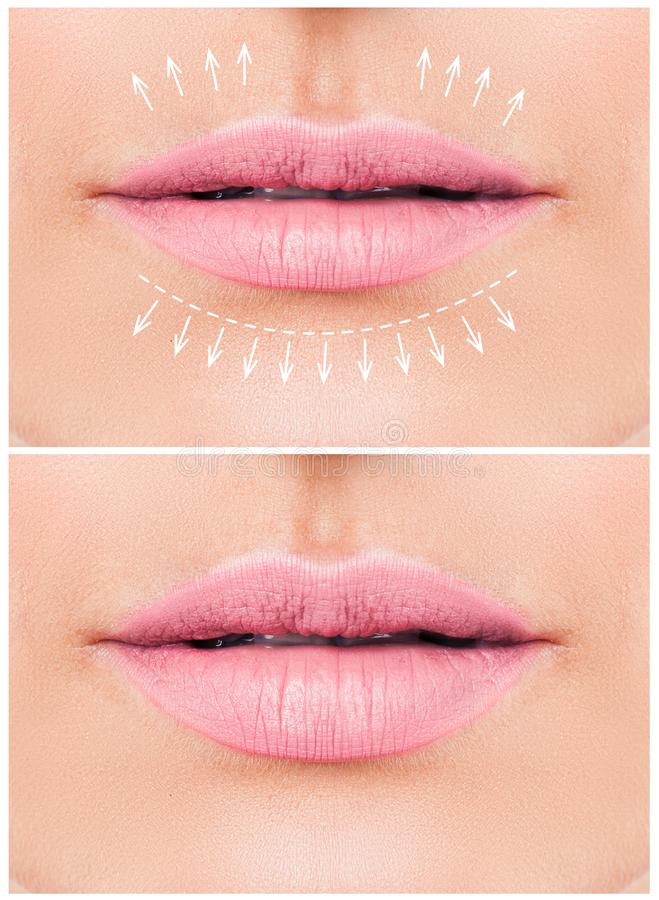 Female lips. Woman lips before and after lip filler injections royalty free stock photos