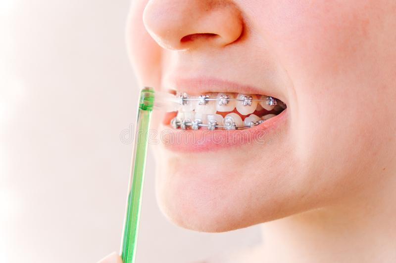 Female mouth with braces and a special brush for interdental spaces close-up on a light background stock photo