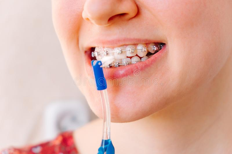Female mouth with braces and toothbrush close-up stock photo