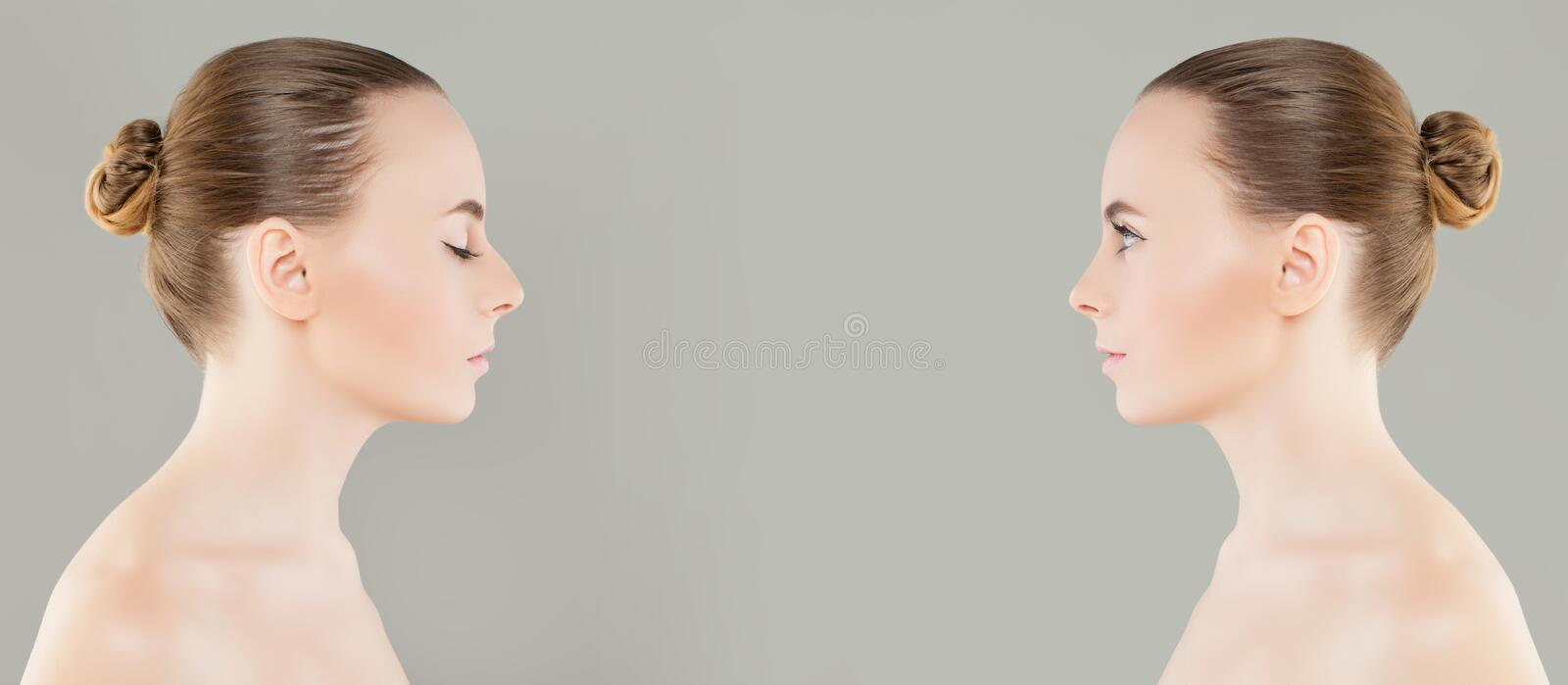 Female Nose Before and After Cosmetic Surgery or Retouch. Rhinoplasty, Beauty and Cosmetology Concept royalty free stock photos