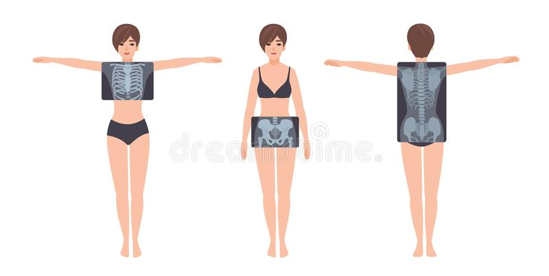 Female patient and her rib cage, pelvis and spine radiograph isolated on white background. Young woman and X-ray. Pictures of her skeletal system on monitor vector illustration