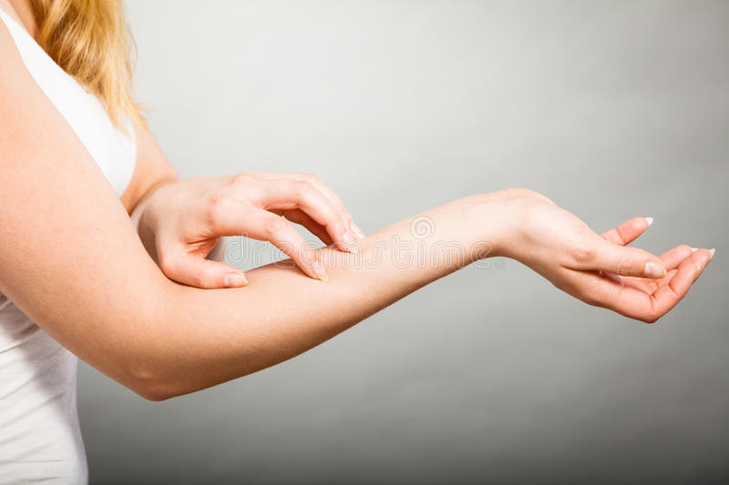 Female scratching her itchy arm with allergy rash. Dermatology, allergy and health problem. Young female scratching her itchy arm with allergy rash royalty free stock photo