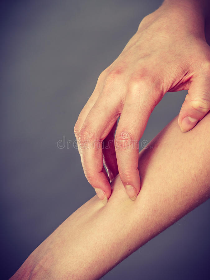 Female scratching her itchy arm with allergy rash. Dermatology, allergy and health problem. Young female scratching her itchy arm with allergy rash stock photo