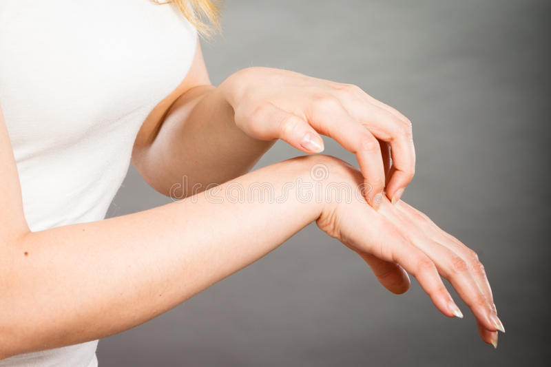 Female scratching her itchy palm with allergy rash. Dermatology, allergy and health problem. Young female scratching her itchy palm with allergy rash royalty free stock photo