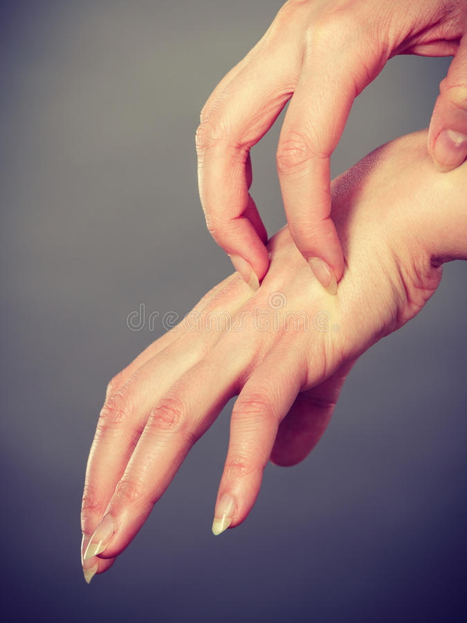 Female scratching her itchy palm with allergy rash. Dermatology, allergy and health problem. Young female scratching her itchy palm with allergy rash stock photos