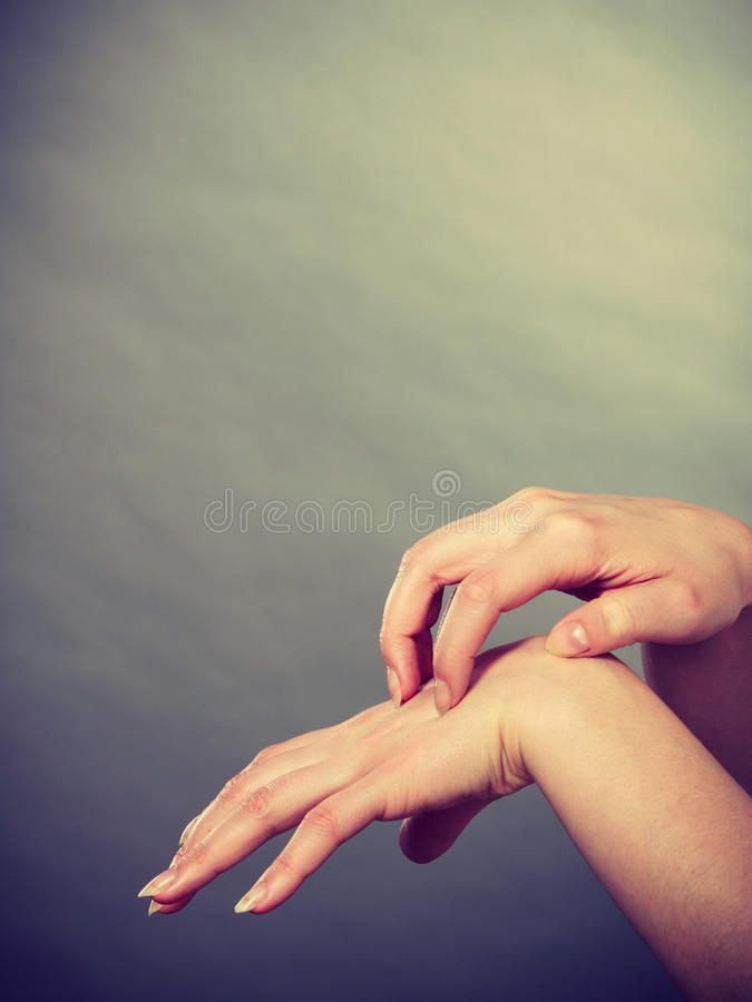 Female scratching her itchy palm with allergy rash. Dermatology, allergy and health problem. Young female scratching her itchy palm with allergy rash royalty free stock photos