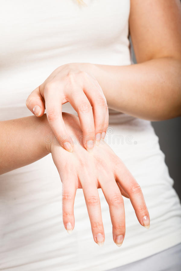 Female scratching her itchy palm with allergy rash. Dermatology, allergy and health problem. Young female scratching her itchy palm with allergy rash royalty free stock photography