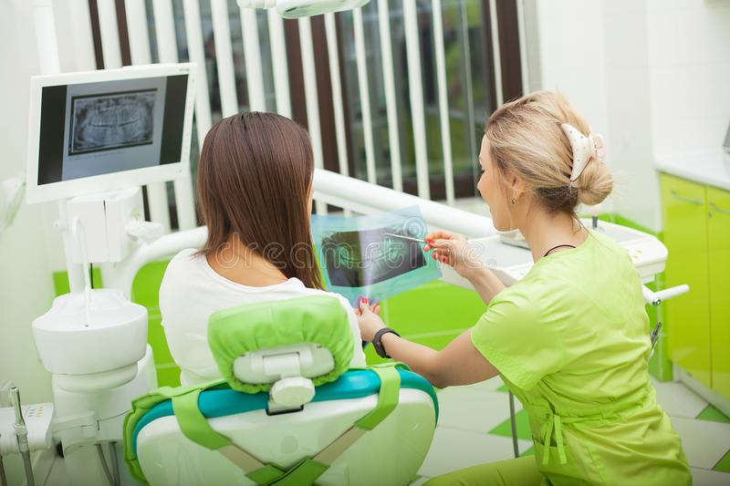 Female stomatologist in protective gloves examining patient`s teeth. Dentist caries treatment at dental clinic office.  royalty free stock photography