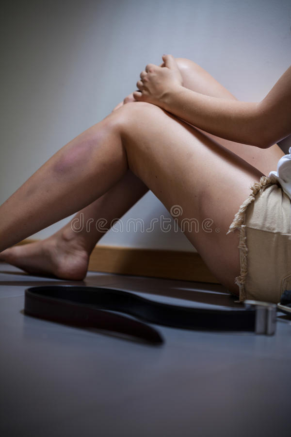 Female victim of the violence stock photo