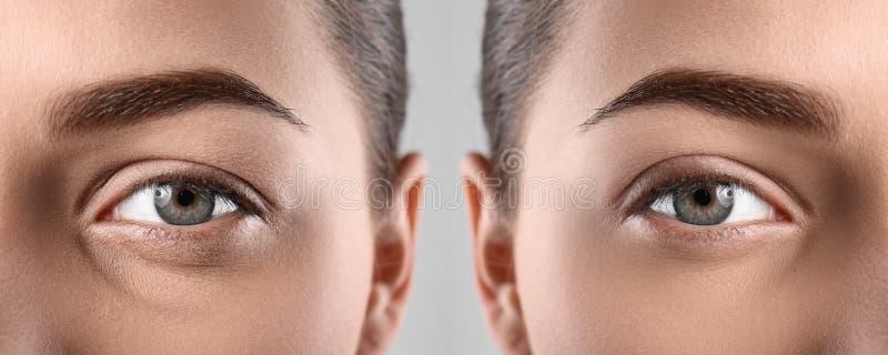 Femme avant et après la procédure blepharoplasty, plan rapproché photo libre de droits