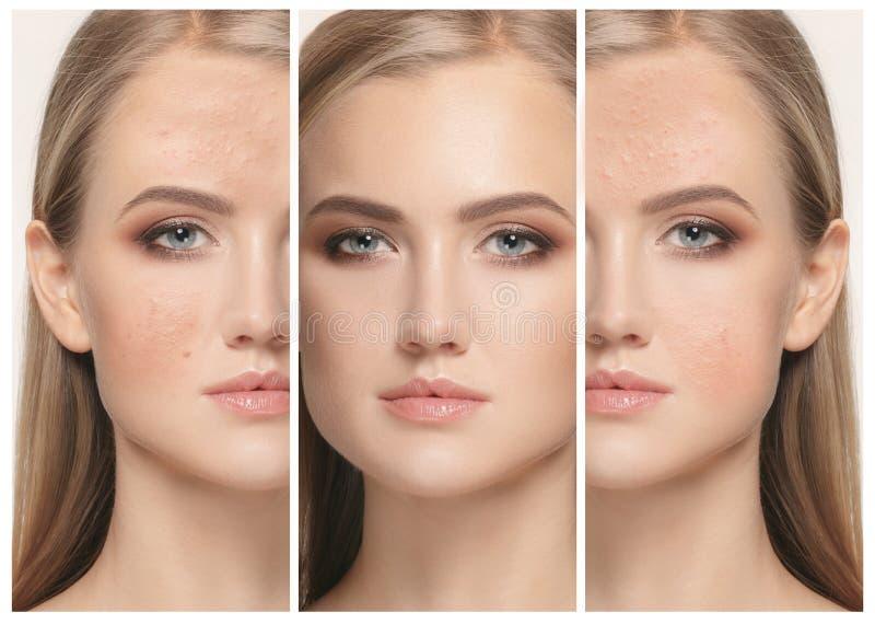 Femme avant et après le traitement photographie stock