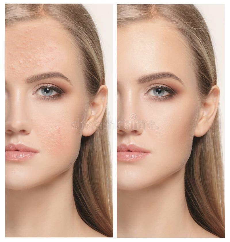 Femme avant et après le traitement images libres de droits