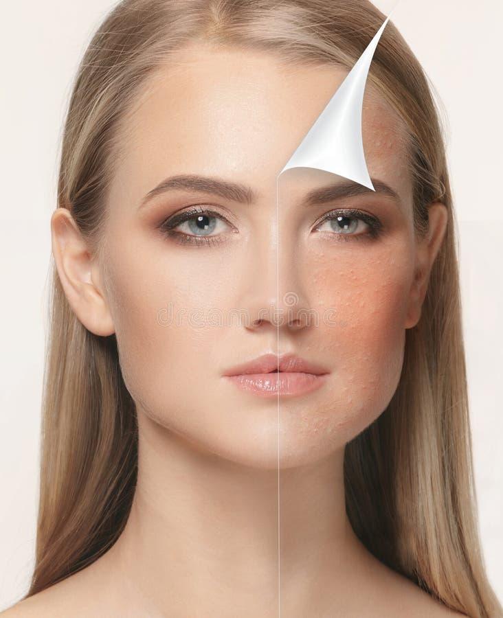 Femme avant et après le traitement image libre de droits