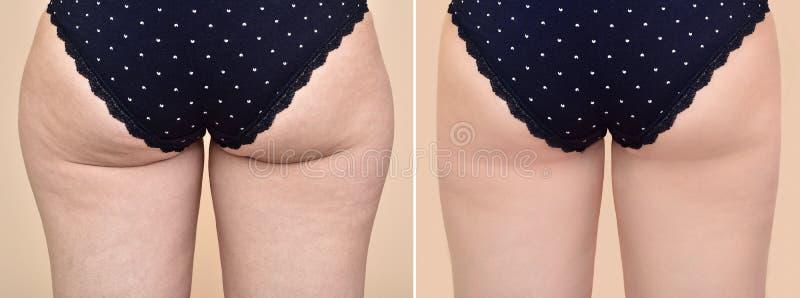 Femme avant et après le traitement médical images libres de droits