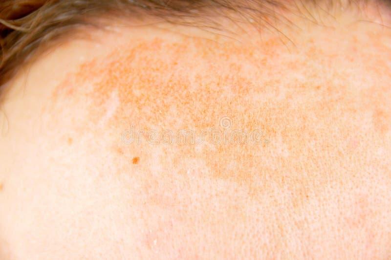 Femme avec la dermatite atopique images stock
