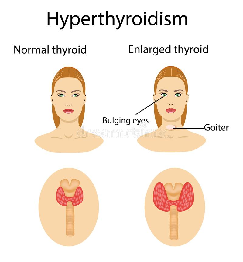 Femme avec la glande agrandie de hyperthyroid Illustration de vecteur illustration de vecteur