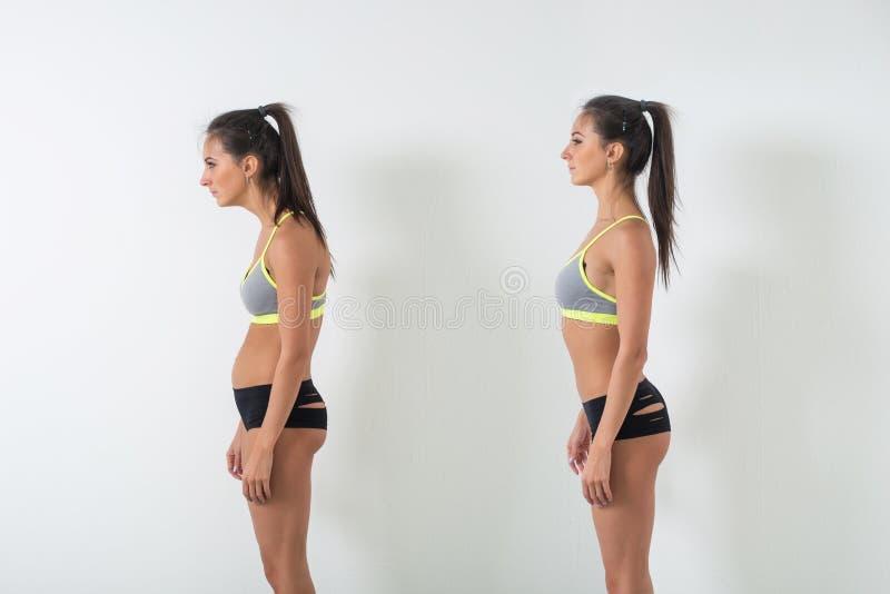 Femme avec la scoliose altérée de défaut de position de posture et l'incidence idéale images libres de droits
