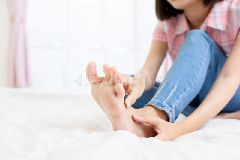 Femme avec le pied d'athl?te photos stock